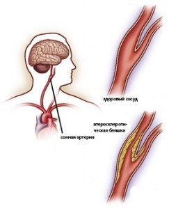 Трифуркация внутренней сонной артерии
